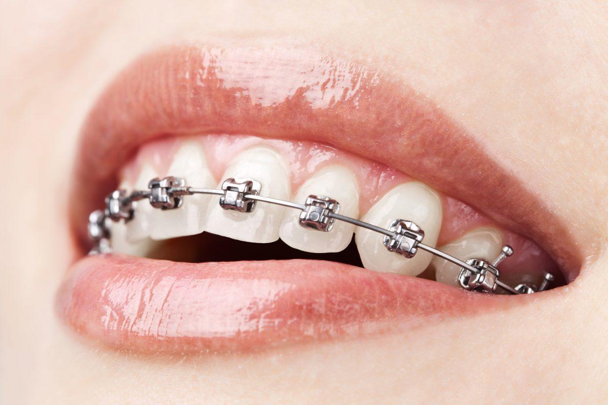 dis-teli-ortodonti-tedavisi-1200x800.jpg