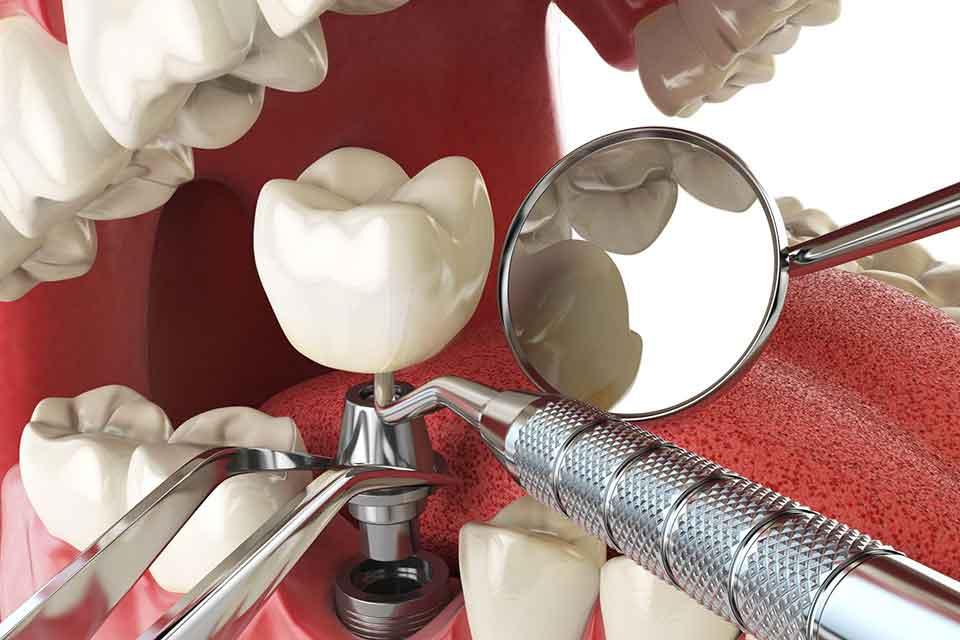 besiktas-implant-tedavisi.jpg